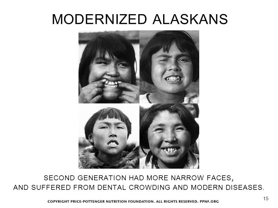 MODERNIZED ALASKANS SECOND GENERATION HAD MORE NARROW FACES,