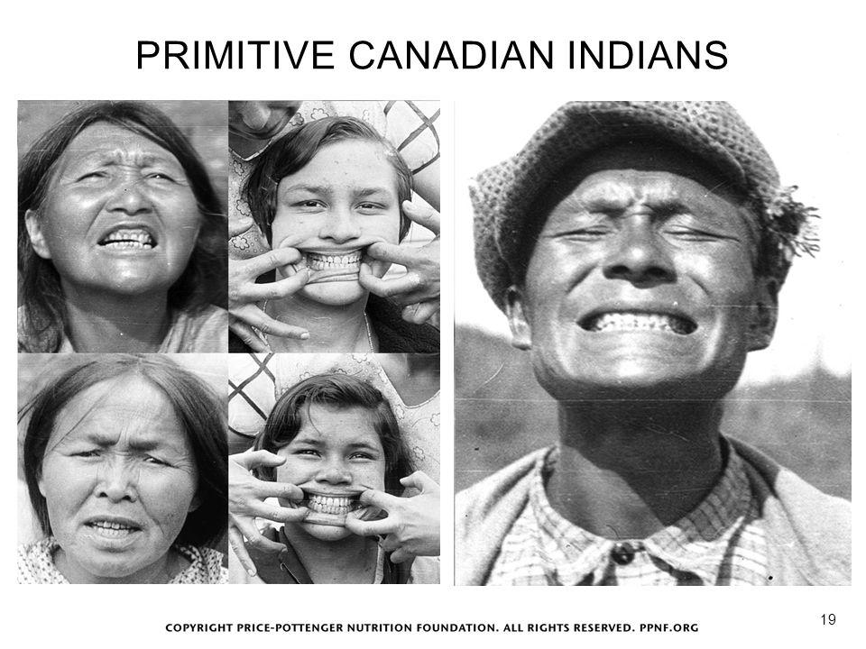 PRIMITIVE CANADIAN INDIANS