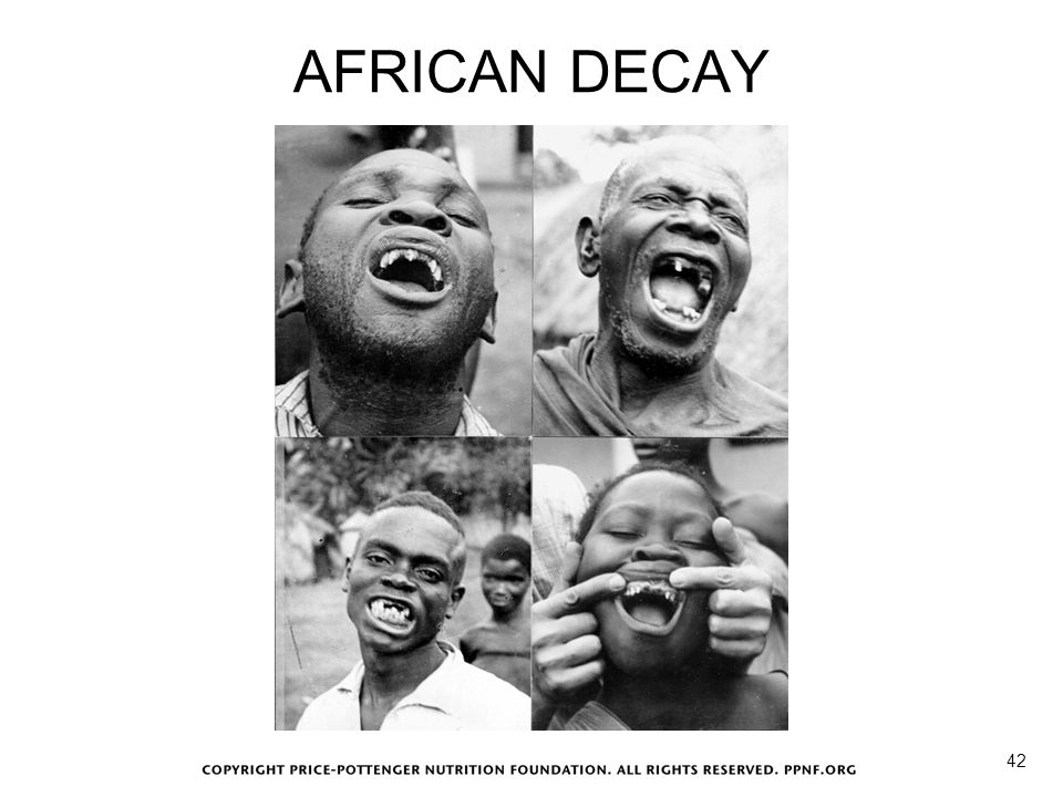 AFRICAN DECAY