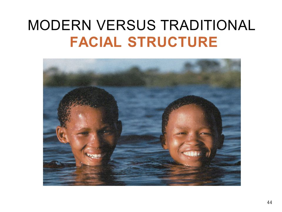 MODERN VERSUS TRADITIONAL FACIAL STRUCTURE