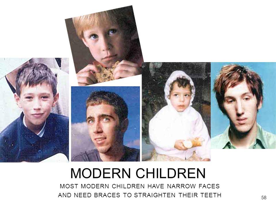 MODERN CHILDREN MOST MODERN CHILDREN HAVE NARROW FACES