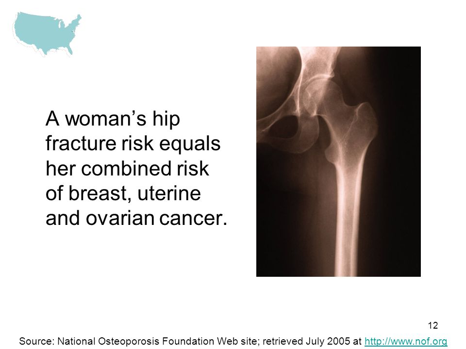 A woman's hip fracture risk equals her combined risk of breast, uterine and ovarian cancer.