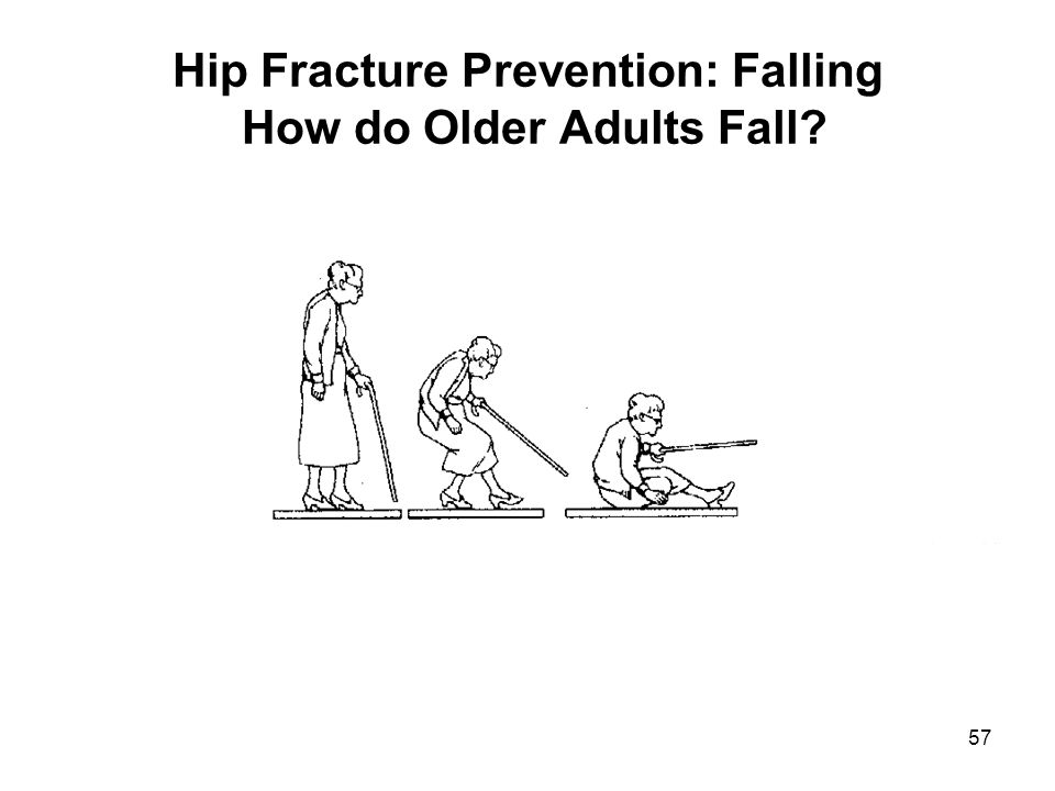 Hip Fracture Prevention: Falling How do Older Adults Fall