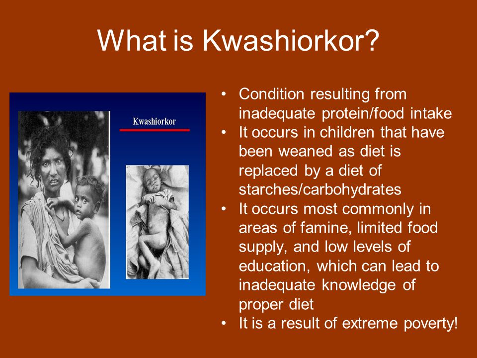 What is Kwashiorkor Condition resulting from inadequate protein/food intake.