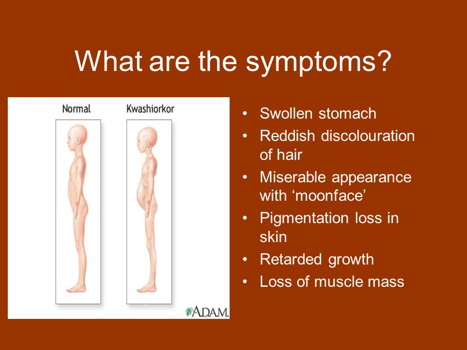 What are the symptoms Swollen stomach Reddish discolouration of hair