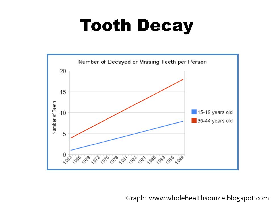 Tooth Decay Graph: www.wholehealthsource.blogspot.com