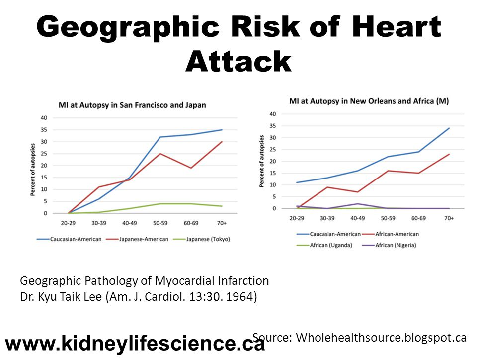 Geographic Risk of Heart Attack