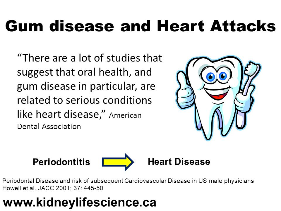 Gum disease and Heart Attacks