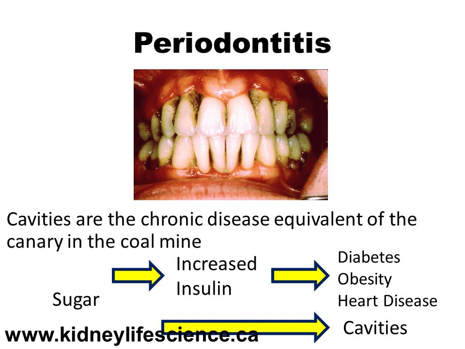 Periodontitis Cavities are the chronic disease equivalent of the canary in the coal mine. Cavities caused primarily by eating sugar and white flour.