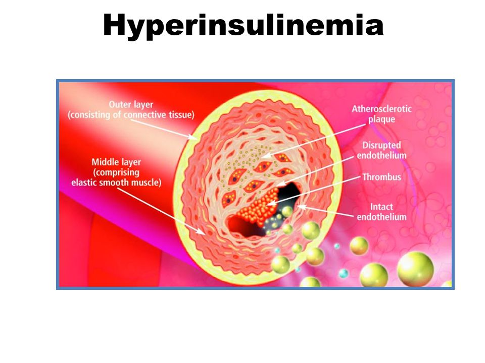 Hyperinsulinemia Increased adhesion molecule expression on endothelial cells. Increased transendothelial migration of leukocytes.
