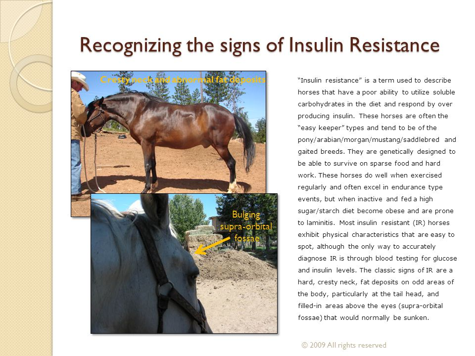 Recognizing the signs of Insulin Resistance