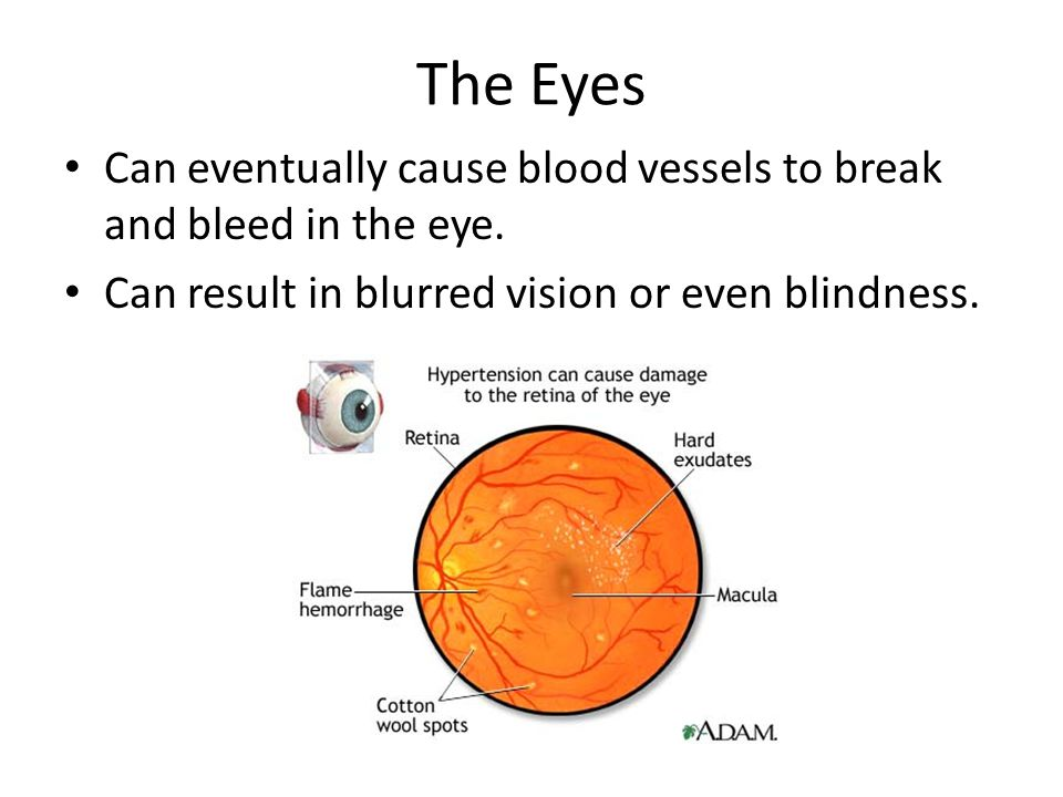 The Eyes Can eventually cause blood vessels to break and bleed in the eye. Can result in blurred vision or even blindness.