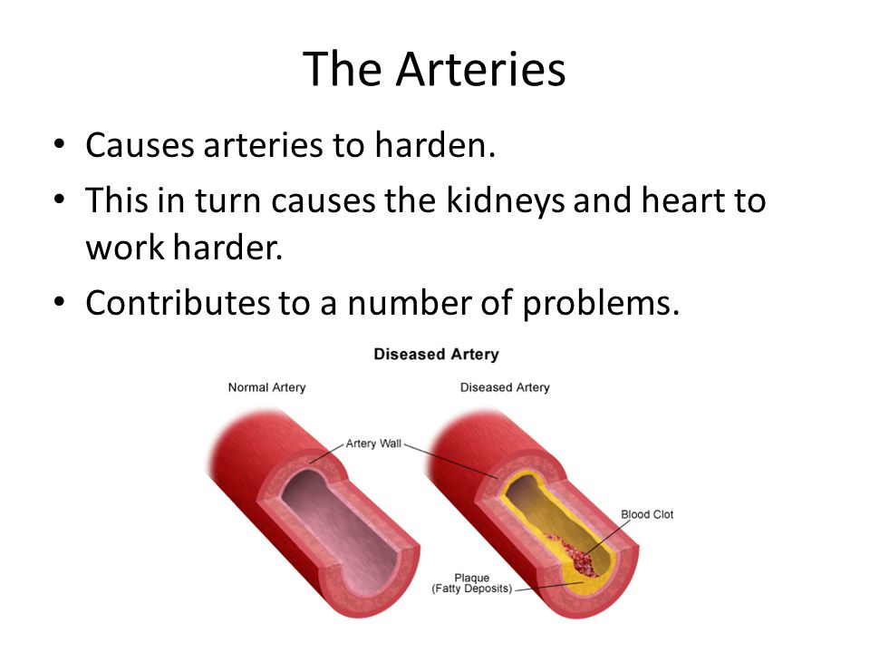 The Arteries Causes arteries to harden.