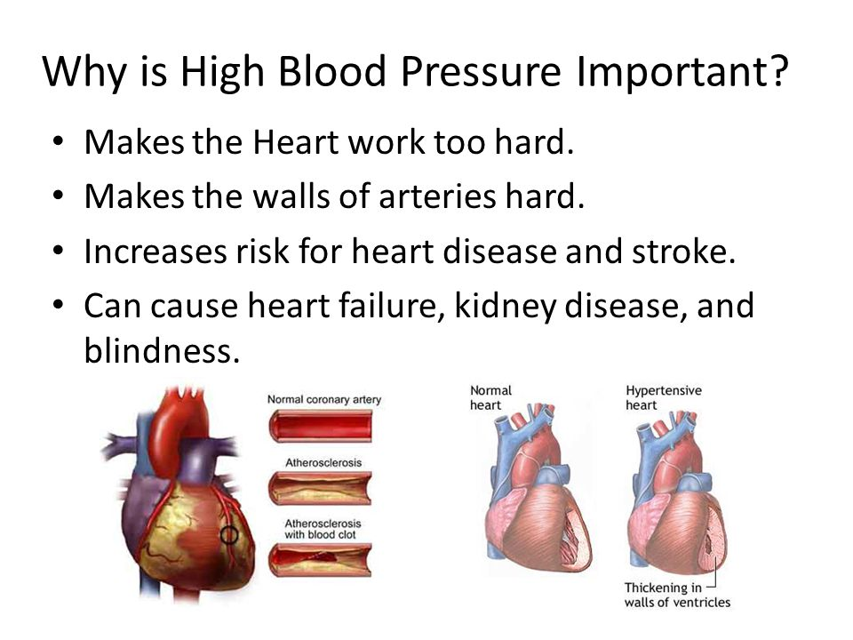 a research on hypertension or high blood presusre Intramural research home / people can lose weight and lower their blood pressure by following the dash eating plan and high blood pressure and elevated ldl.