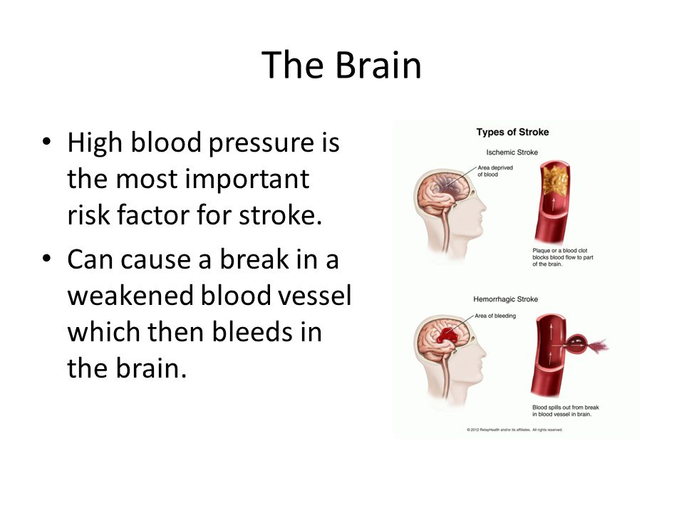 The Brain High blood pressure is the most important risk factor for stroke.