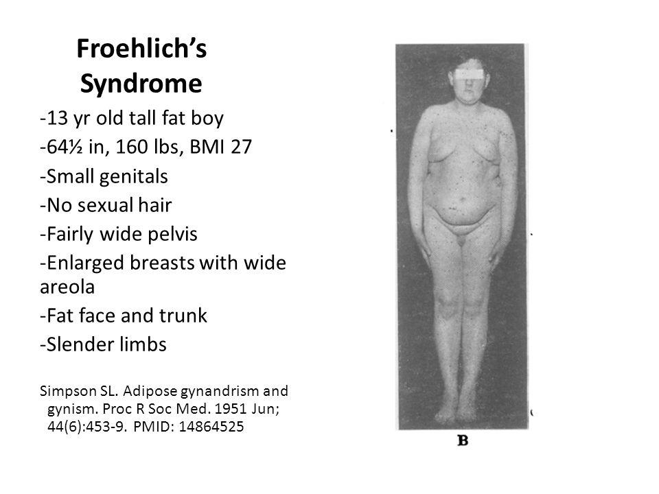 Froehlich's Syndrome 13 yr old tall fat boy 64½ in, 160 lbs, BMI 27