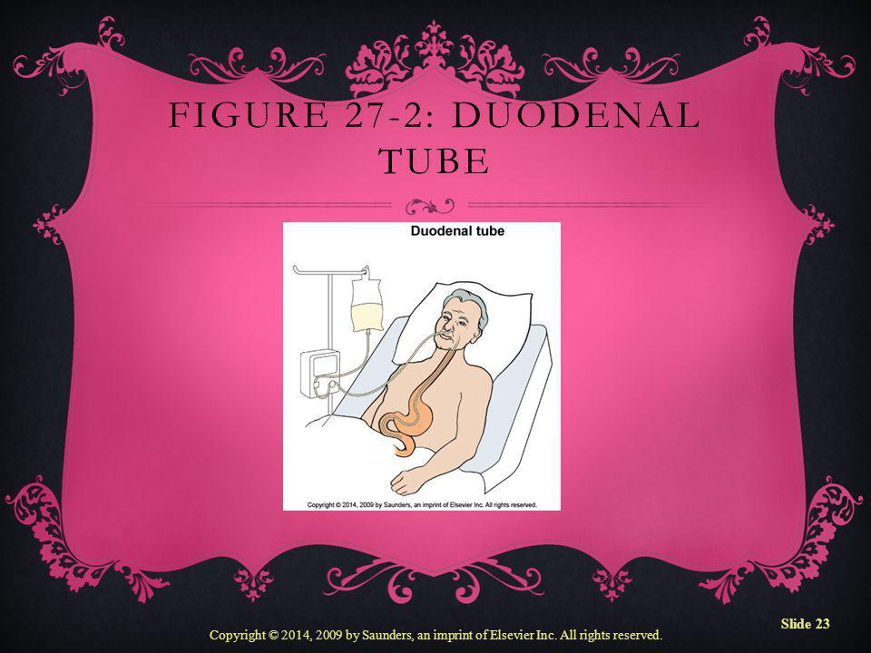 Figure 27-2: Duodenal tube