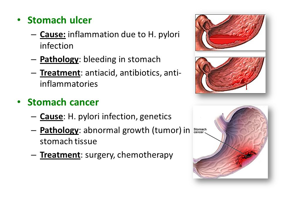 Stomach ulcer Stomach cancer