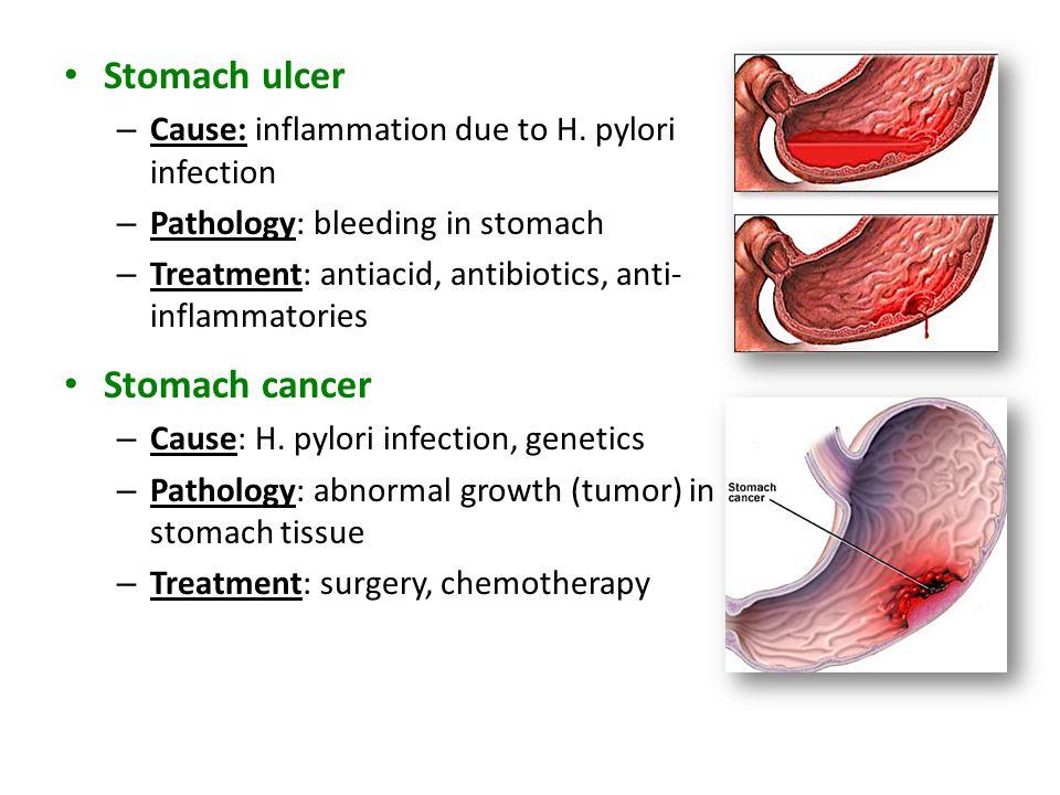 Stomach ulcer Stomach cancer