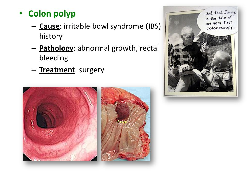 Colon polyp Cause: irritable bowl syndrome (IBS) history