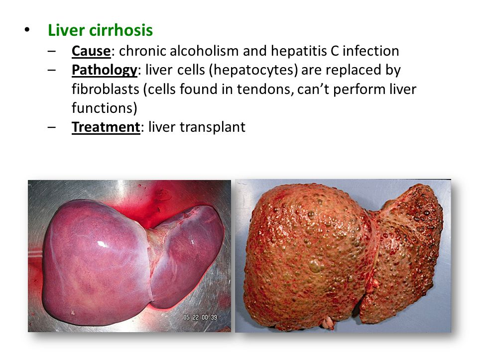 Liver cirrhosis Cause: chronic alcoholism and hepatitis C infection