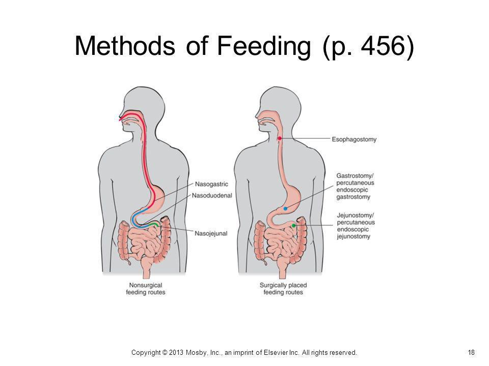 Methods of Feeding (p. 456) Types of enteral feeding.