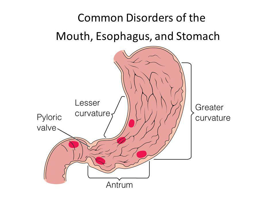 Common Disorders of the Mouth, Esophagus, and Stomach