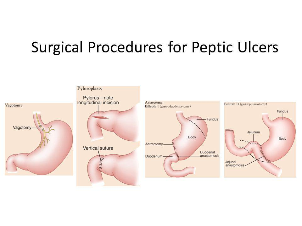 Surgical Procedures for Peptic Ulcers