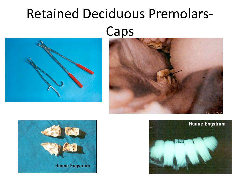 Retained Deciduous Premolars- Caps