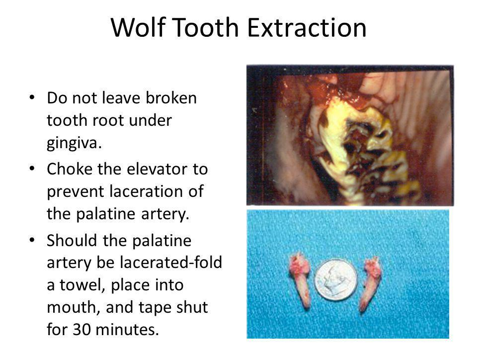 Wolf Tooth Extraction Do not leave broken tooth root under gingiva.