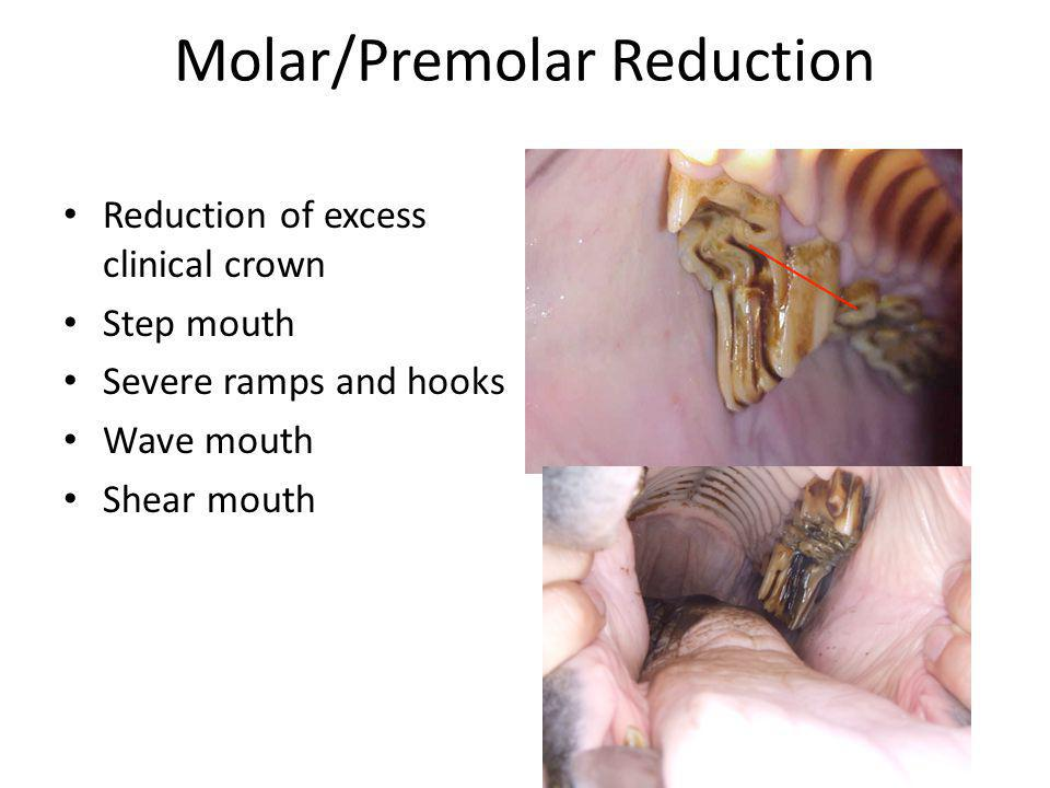Molar/Premolar Reduction