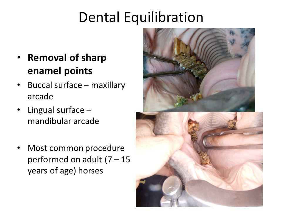 Dental Equilibration Removal of sharp enamel points