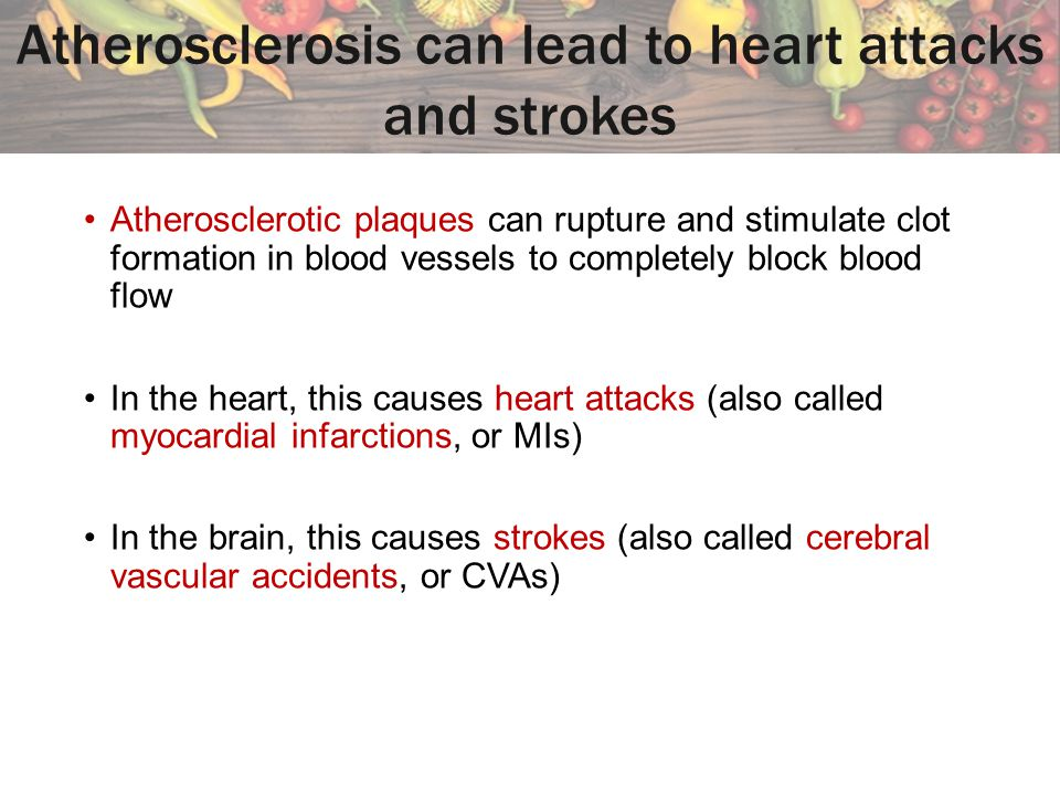 Atherosclerosis can lead to heart attacks and strokes