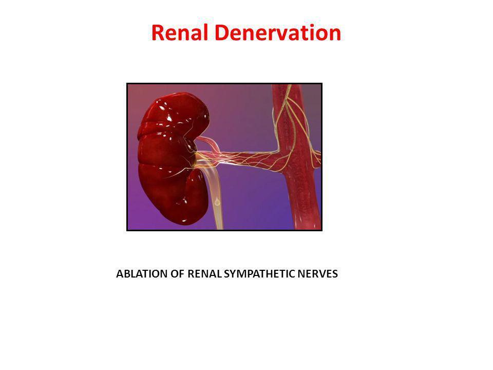 Renal Denervation ABLATION OF RENAL SYMPATHETIC NERVES 35 35