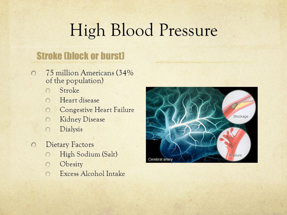 Stroke (block or burst)
