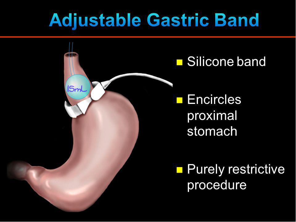 Adjustable Gastric Band