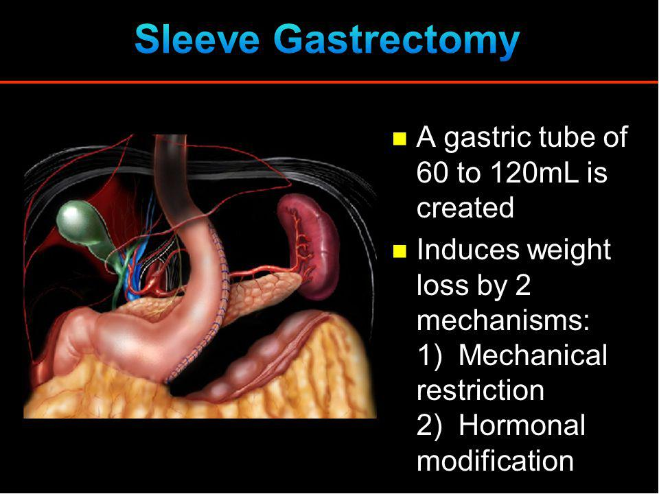 Sleeve Gastrectomy A gastric tube of 60 to 120mL is created