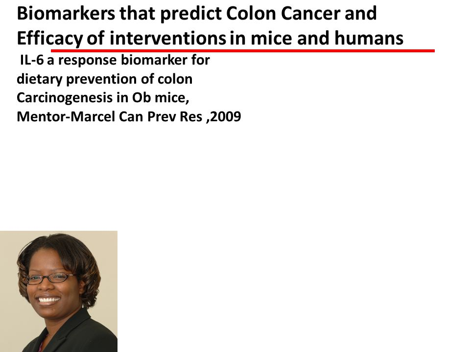 Biomarkers that predict Colon Cancer and Efficacy of interventions in mice and humans IL-6 a response biomarker for dietary prevention of colon Carcinogenesis in Ob mice, Mentor-Marcel Can Prev Res ,2009