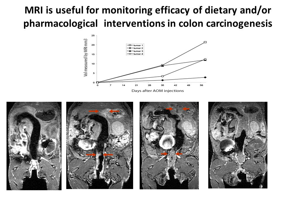 MRI is useful for monitoring efficacy of dietary and/or pharmacological interventions in colon carcinogenesis