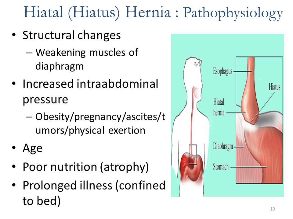 Hiatal (Hiatus) Hernia : Pathophysiology
