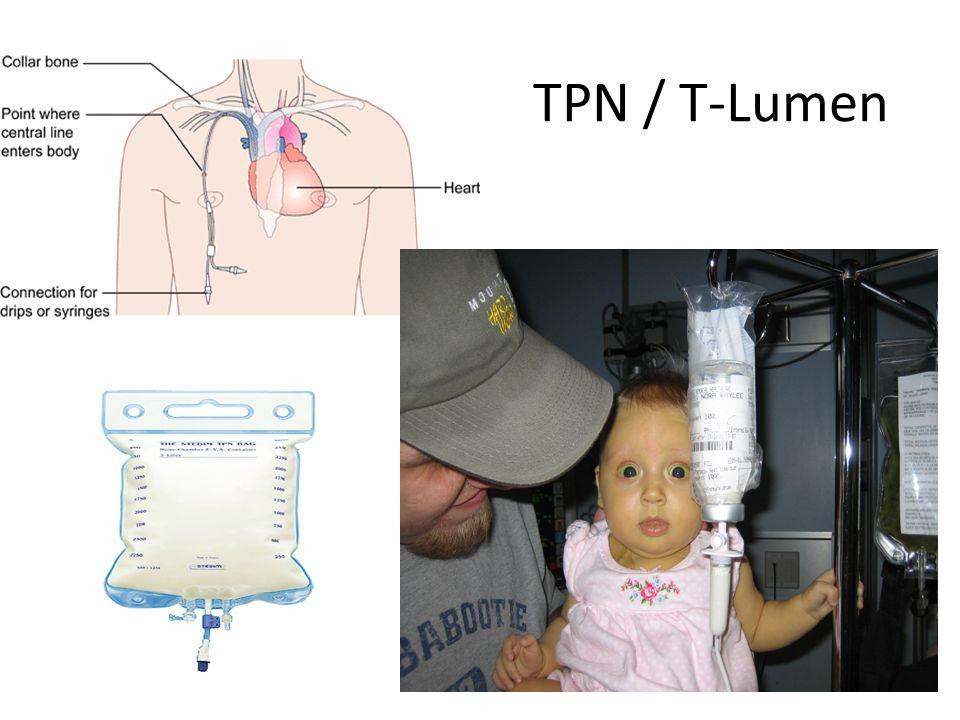 TPN / T-Lumen