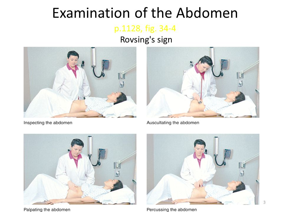 Examination of the Abdomen p.1128, fig. 34-4 Rovsing s sign