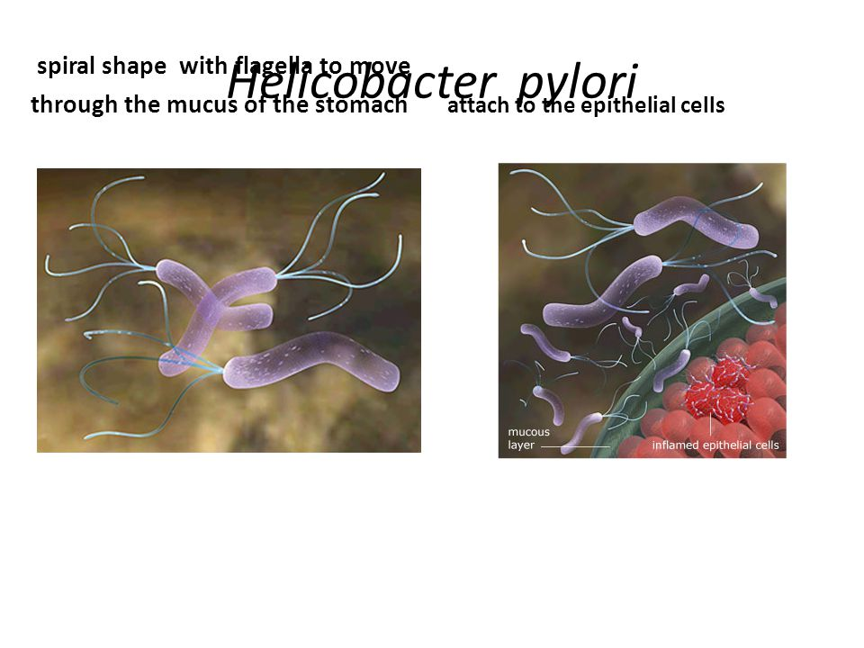 Helicobacter pylori spiral shape with flagella to move