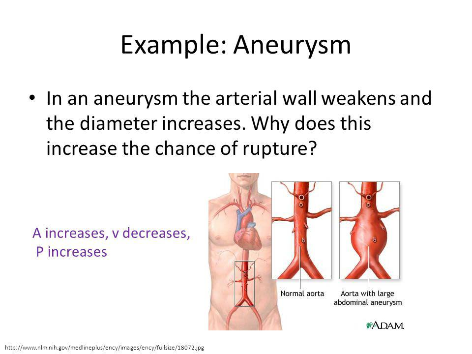 Example: Aneurysm In an aneurysm the arterial wall weakens and the diameter increases. Why does this increase the chance of rupture