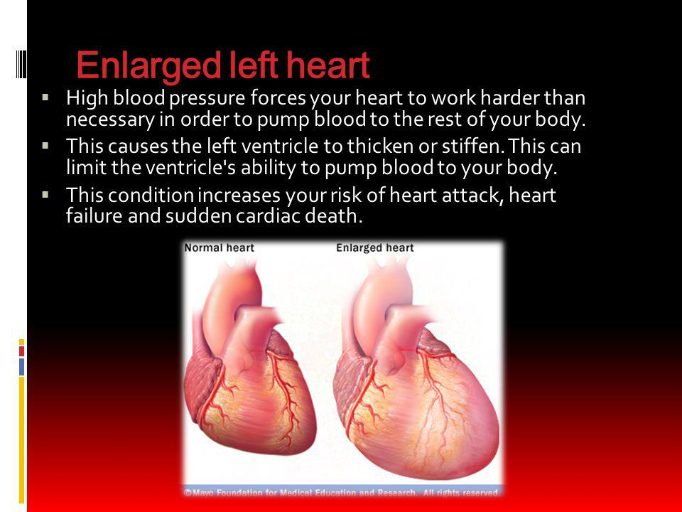 Enlarged left heart High blood pressure forces your heart to work harder than necessary in order to pump blood to the rest of your body.