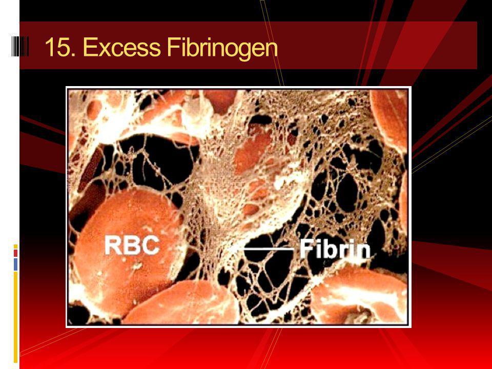 15. Excess Fibrinogen
