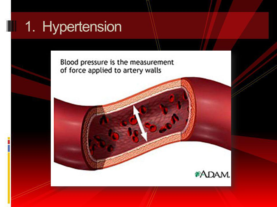1. Hypertension