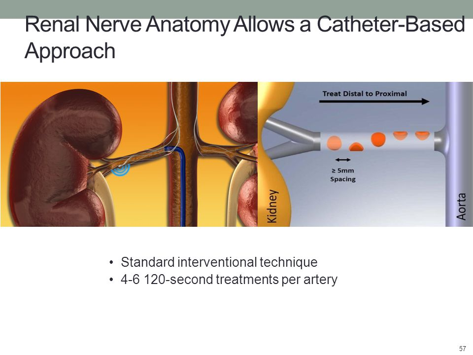 Renal Nerve Anatomy Allows a Catheter-Based Approach