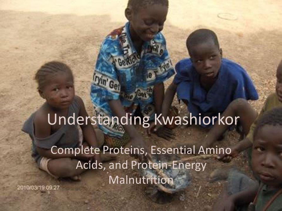 Understanding Kwashiorkor