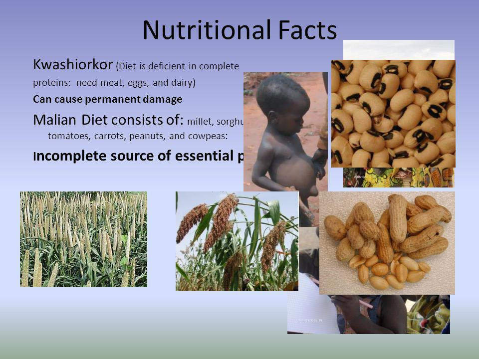 Nutritional Facts Kwashiorkor (Diet is deficient in complete